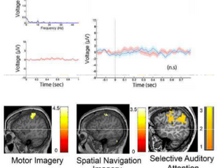 Simple somatosensory orienting predicts overt and covert awareness in disorders of consciousness