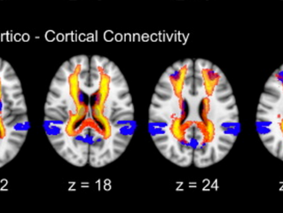 Check out our latest paper on the structural bases of disorders of consciousness