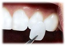 dentista sedacion puerto rico, puerto rico dentista