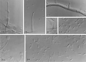 Phaeocremonium aleophilum agente del Mal dell'Esca (Trichoderma e Mal dell'Esca)