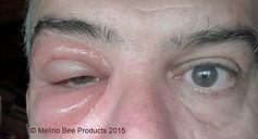 Μελίριο: Τσίμπημα Μέλισσας
