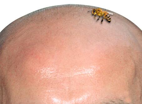 Τι θα κάνω αν με τσιμπήσει μέλισσα;