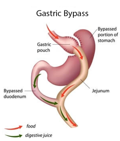 gastric-bypass_edited_edited.png