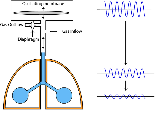 HFOV Principle and Ventilator Set-Up