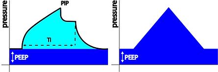 Mean Airway Pressure Volume Controlled Ventilation