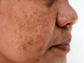 5 tipos de manchas de pele: entenda as diferenças e tratamentos