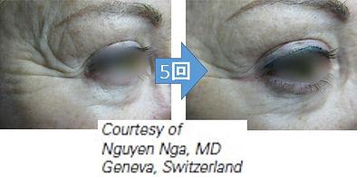 Tro-Facial Usecase1.jpg
