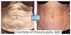 Francis John.jpg