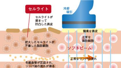 トロフィックスによるセルライト除去の図