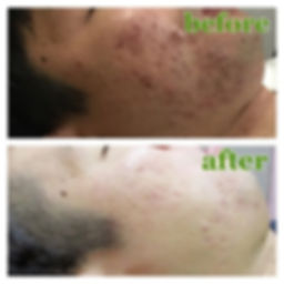 Before-After in Chaina reviced.jpg