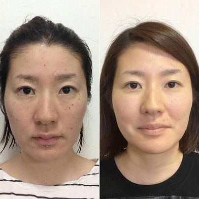 before_after_キュービックエック