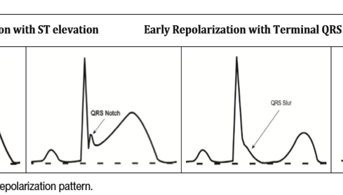 Electrocardiografía de repolarización precoz