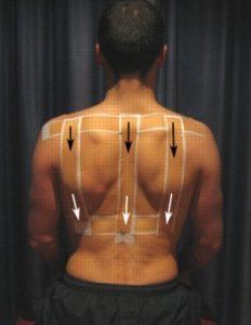 Posture Correction Shoulder Harnesses and Tape