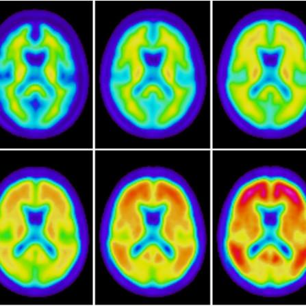 Alzheimer: nuovi sviluppi in ambito diagnostico e terapeutico