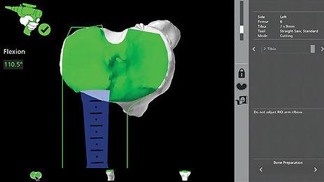 Makoplasty robotic total knee replacement surgery
