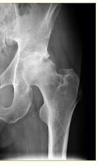 x-ray example of hip arthritis and hip replacement Hip pain Manassas Haymarket Gainesville Centerville Woodbridge Warrenton VA