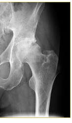 x-ray example of hip arthritis and hip replacement Hip pain Manassas Haymarket Gainesville Centerville Woodbridge Warrenton VA