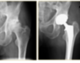x-ray example of hip arthritis and hip replacement