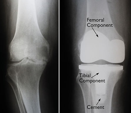 x-ray example of knee arthritis and total knee replacement