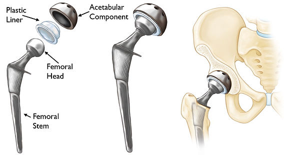 example of the components and implants of total hip replacement