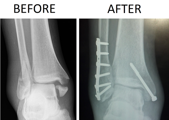 X-ray example of broken bimalleolar ankle fracture before and after surgery with plate and screws