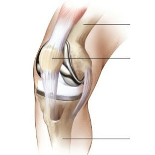 example of total knee replacement implants