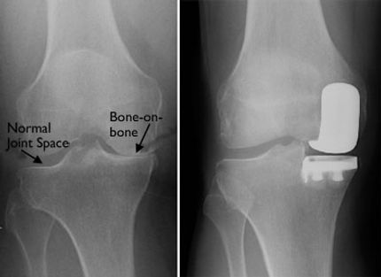 X-ray Before and After Partial Knee Replacement