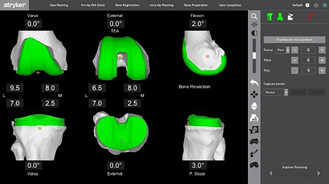 Mako robotic assistance total knee replacement preop planning