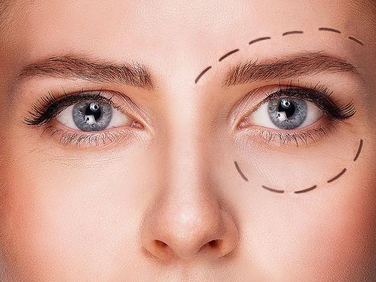 blepharoplastie-chirurgie-plastique-pour