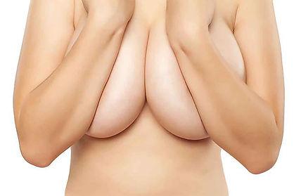 reduction-mammaire-bordeaux.jpg