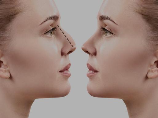 La rhinoplastie : tout savoir sur la chirurgie du nez