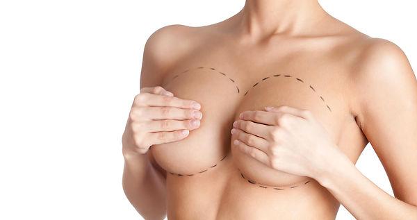 chirurgie-du-sein-augmentation-mammaire-