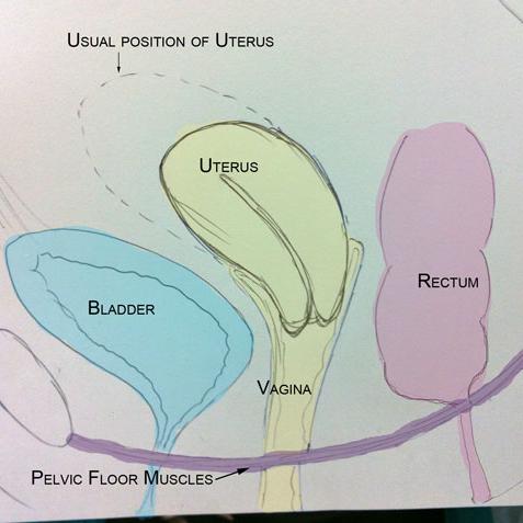 pelvic organs diagram pelvic muscle diagram pelvic organ prolapse - part 1 | women's health ... #1