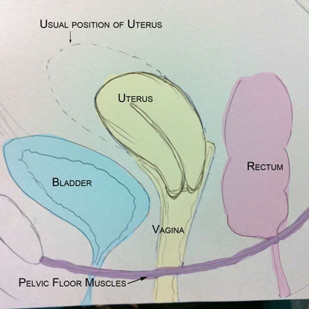 uterine wall diagram pelvic organ prolapse - part 1 | women's health ...