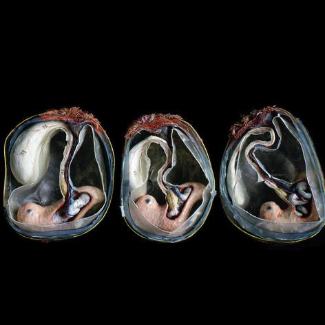 Three Embryoes 1994.jpg