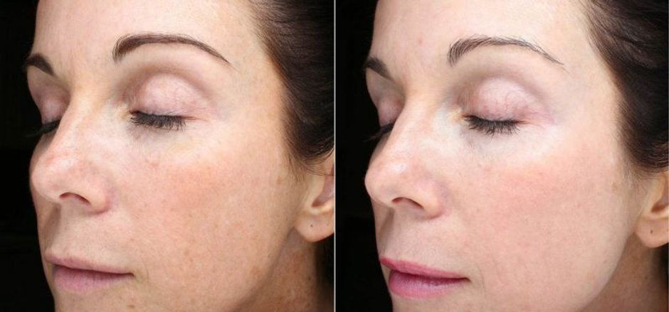 Fractional Laser to Face