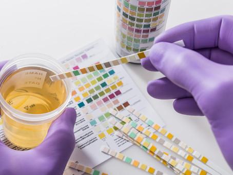 Drug Screenings For The Workforce
