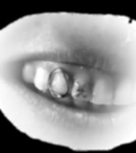 Gold Tooth gem, Ms. Dee, X Tooth gem