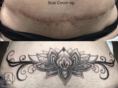 Scar Coverup_decorative lotus.jpg