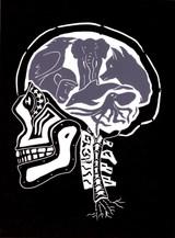 AI X-Ray