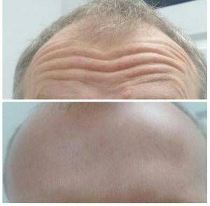 Wrinkle Relaxation Treatment Liverpool