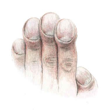 Kranke Hand
