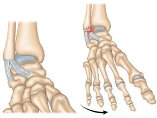 Entorses de cheville et Ostéopathie