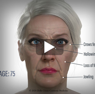 Aging fat pads promo video