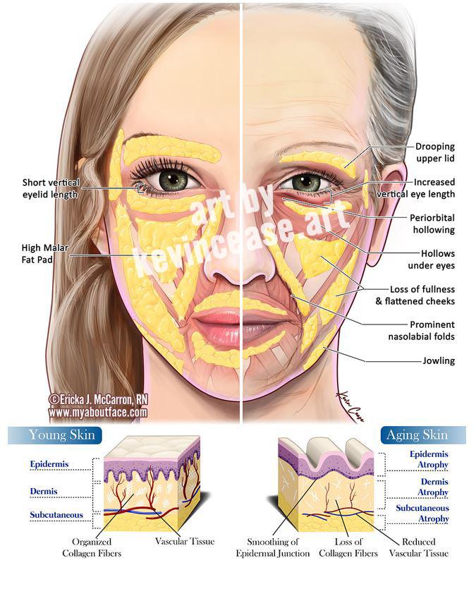 artbykevincease   Aging skin