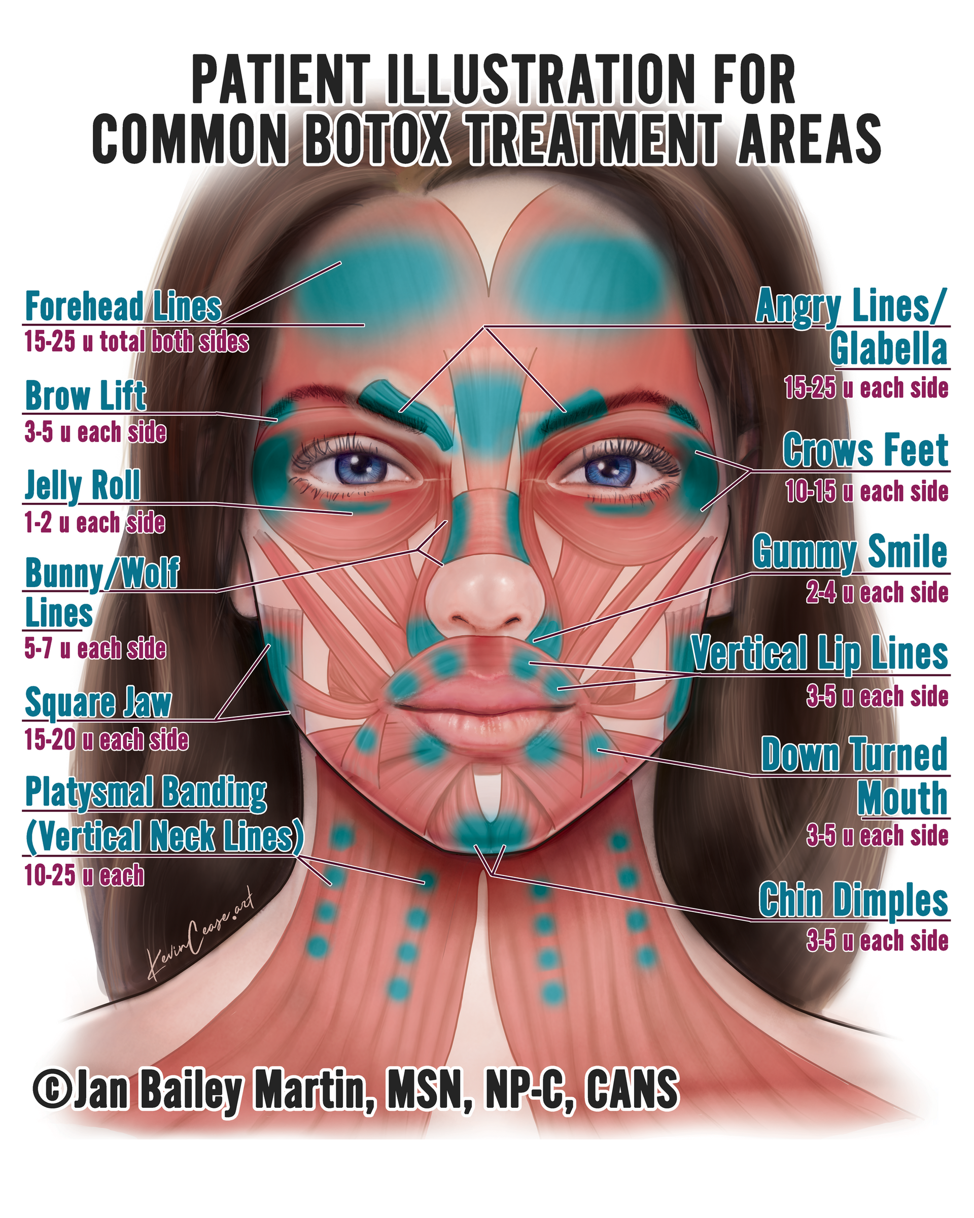 patient illustration for common botox treatment areas