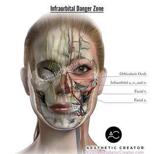 Infraorbital Danger Zone
