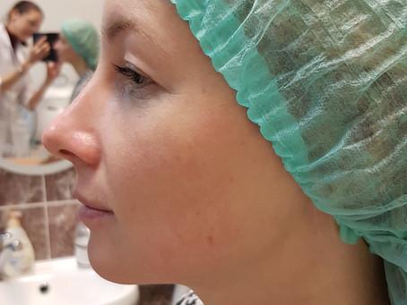 Радикальное улучшение кожи с помощью пролонгированного пилинга Энзимацид   (Ericson, Франция)