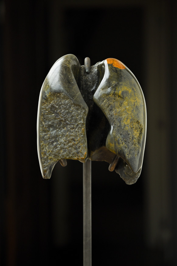 Lungs turned into stone