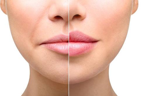 Lip Enhancement Berkshire